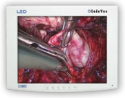 "NDS Surgical Imaging EndoVue HD LED 19"" Monitor"